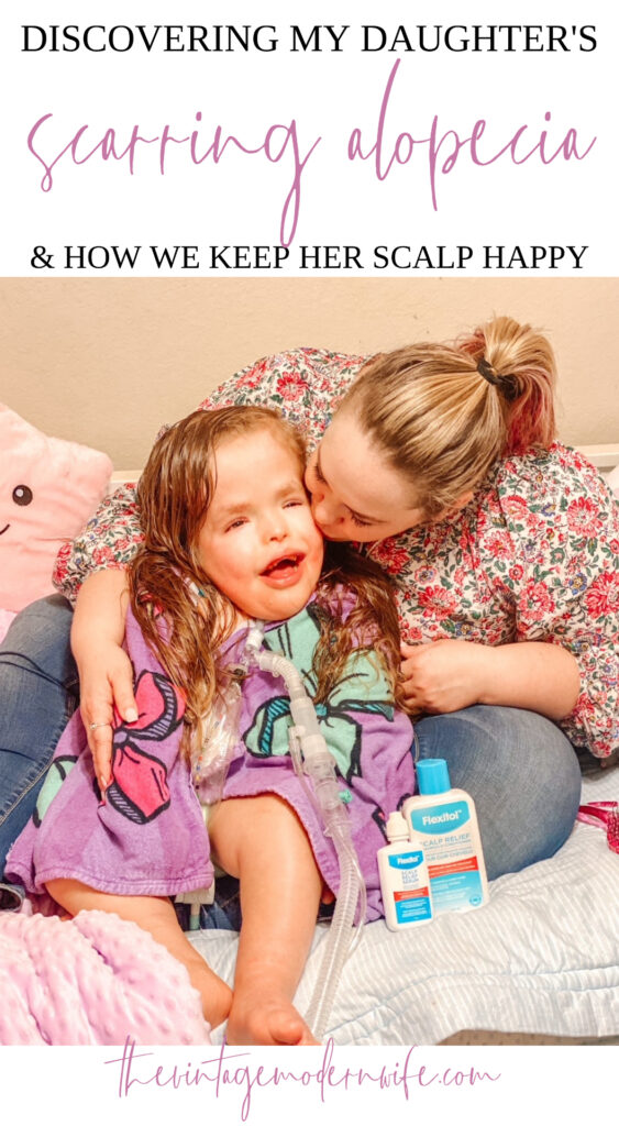 Looking for ways to keep a healthy scalp? Check out these tips from a mom that's tried everything after her daughter had a scarring alopecia diagnosis.